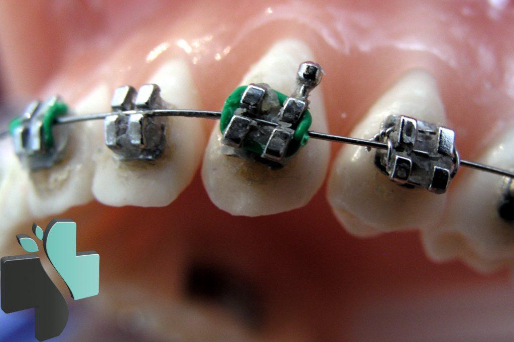 cera de ortodoncia